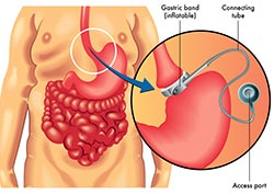 Bariatric Surgical Procedures (Weight-Loss Surgery